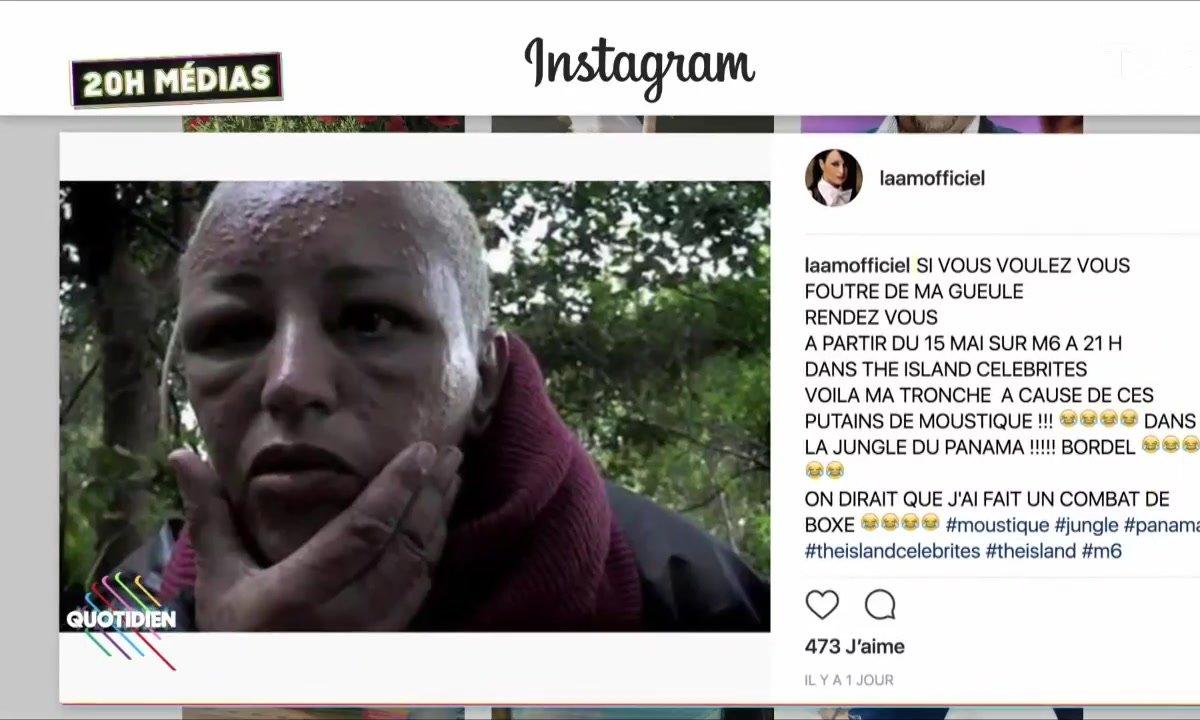20h Médias : la chanteuse Lââm défigurée dans The Island