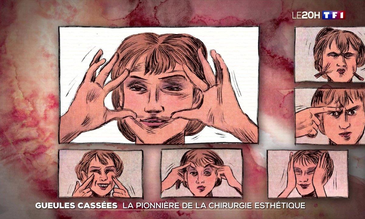 La vie exceptionnelle de Suzanne Noël, pionnière de la chirurgie esthétique