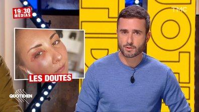 19h30 Médias : l'agression d'une jeune femme en jupe à Strasbourg a-t-elle été inventée ?