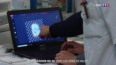 Échographie en 3D : voir son bébé en relief