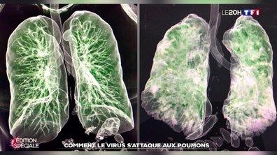 Les images 3D des dégâts du virus dans les poumons