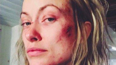 Dr House : Olivia Wilde blessée, mais que lui est-il arrivé ?