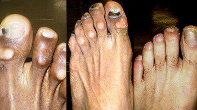 Insolite : les pieds des joueurs