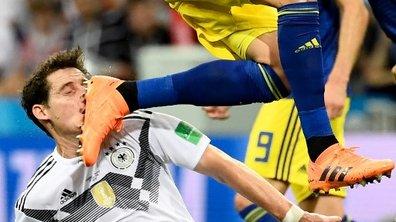 Allemagne-Suède : Rudy sort avec le nez en sang