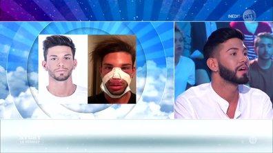 Secret Story 11 : Sacha Buyse après son opération de chirurgie esthétique : « Je me sens très bien ! »