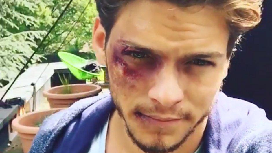 Rayane Bensetti blessé sur le tournage de Clem !