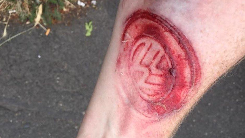 Insolite - Après un accident, il trouve le logo Volkswagen tatoué sur son bras